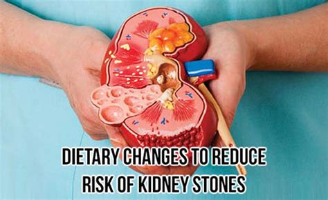 Dietary changes to reduce risk of kidney stones   Kauvery