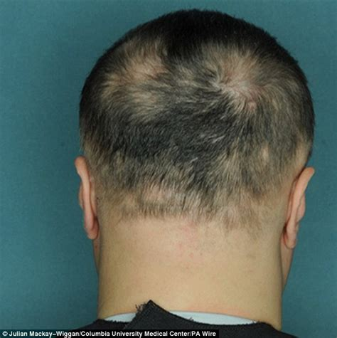 Pill that can cure baldness in five months for alopecia