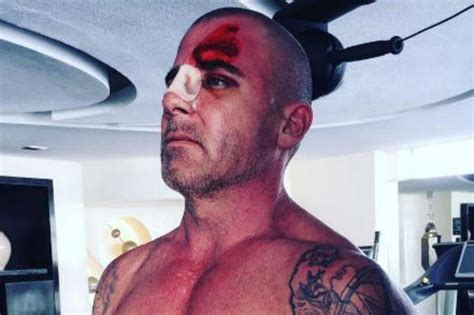 Dominic Purcell injured on set