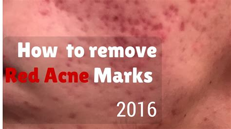 How to remove red marks from acne - YouTube