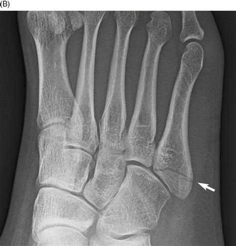 Fractures and dislocations of the metatarsals and toes