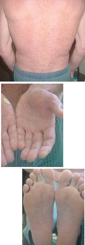 A diagnosis unmasked by an unusual reaction to ceftriaxone