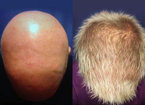 FDA-Approved Drug Cured Patients with Alopecia Areata