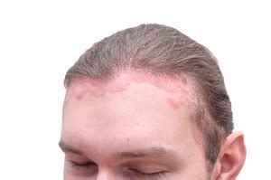 Itchy Flakey Scalp Problems - Cotswold Trichology